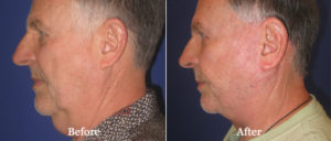 Visage San Francisco Plastic Surgery Office Facelift Before and After