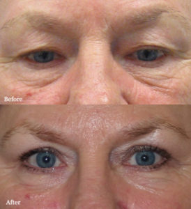 Visage San Francisco Plastic Surgery Office Eyelid Lift Before and After