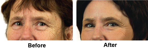 Laser Eye Lid Lift (Blepharoplasty) in San Francisco Bay