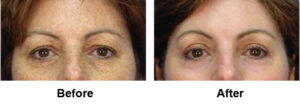 Laser EyeLid Lift Before and After