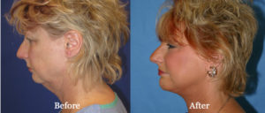 San Francisco Facelift Example - Before and After Picture