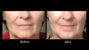 Sciton TRL Laser Results
