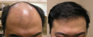 Visage San Francisco Plastic Surgery Hair Restoration Before and After