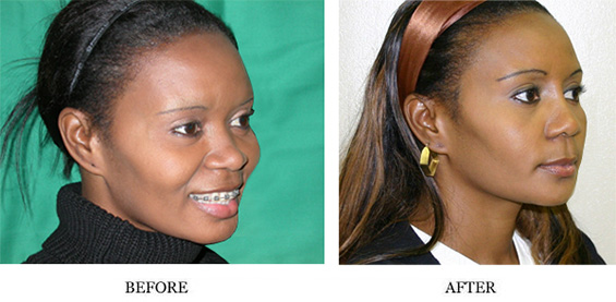 Visage San Francisco Plastic Surgery Office Nose Reshaping Before and After