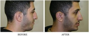 Nose Reshaping - Male