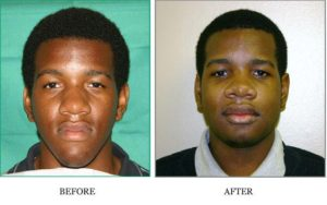 Reconstructive Plastic Surgery Before and After