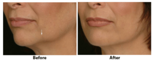 Jaw injections using Radiesse